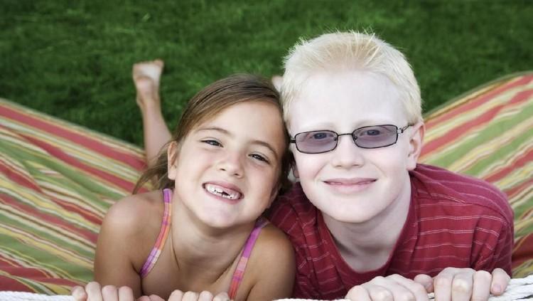 Albino ini merupakan kelainan genetik yang menyebabkan seseorang memiliki rambut dan kulit berwarna terang.