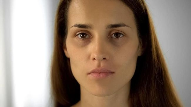 Penampakan kantung mata bukan saja disebabkan kebiasaan begadang, ahli dermatologi mengungkapkan faktor makanan yang dikonsumsi dan genetik juga berpengaruh.