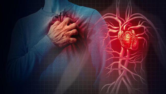 Serangan jantung lebih sering terjadi di pagi hari dibandingkan waktu lainnya. Berikut alasannya.