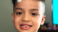 <p>Pertama kali gigi Fahri copot nih, Bun. Jadi ompong sementara ya, Nak. <em>Hi-hi-hi.</em> (Foto: Instagram/ @ferdyhasan) </p>
