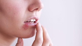 Herpes Zoster: Penyebab, Gejala, dan Pencegahan
