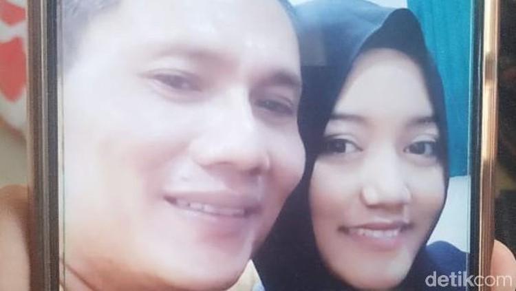 Kondisi istri yang dibakar suaminya di Surabaya mengalami luka serius, hingga melepuh. Tak menutup kemungkinan harus melakukan cangkok kulit.