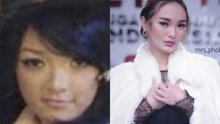 Zaskia Gotix. Gaya Zaskia Gotix saat masih remaja. Sama dengan Siti Badriah, Zaskia juga kini menjelma menjadi sosok yang lebih dewasa.