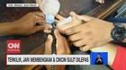 VIDEO: Terkilir, Jari membengkak Cincin Sulit Dilepas