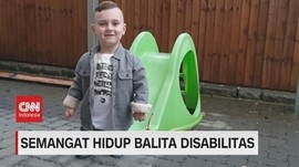 VIDEO: Semangat Hidup Taylor, Balita Disabilitas