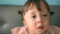 <p>Di usia 11 bulan, Ziona didiagnosis campomelic dysplasia (CMD), yakni suatu kondisi langka yang bisa mengancam jiwa. (Foto: Instagram @joannaalexandra)</p>