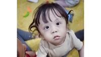 <p>Ziona lahir dengan keistimewaan yang membuatnya berbeda dari anak-anak kebanyakan. Saat dilahirkan, kondisinya prematur dan mengalami gangguan fungsi pernapasan serta posisi kaki bengkok. (Foto: Instagram @joannaalexandra)</p>