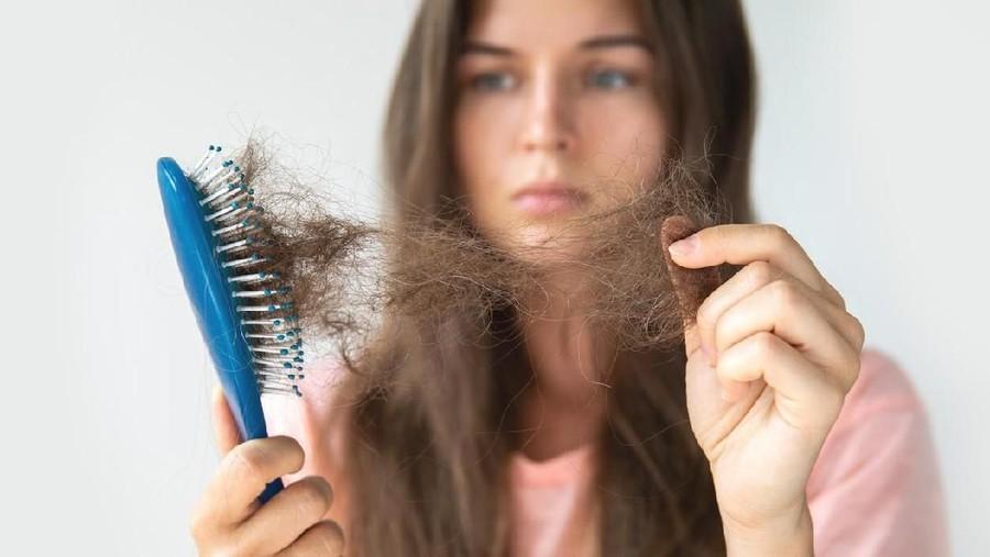 Penyebab Rambut Rontok setelah Melahirkan dan Cara Mengatasinya