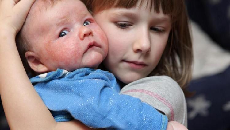 Biang keringat memang paling serang menyerang bayi karena kelenjar keringat yang belum berkembang. Simak pertolongan pertamanya yuk!