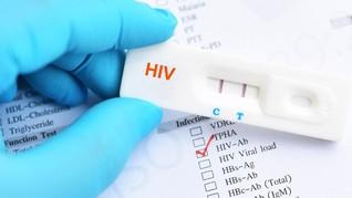 Peneliti Temukan Kekebalan Tubuh Tertentu Dapat Melawan HIV