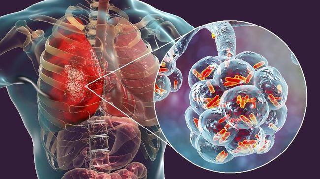 Senin (20/1), Korea Selatan mengonfirmasi adanya kasus pertama virus korona (coronavirus) mirip SARS yang menyebar di China.