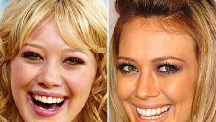 Penampilan 14 Selebriti Sebelum dan Sesudah Operasi Gigi