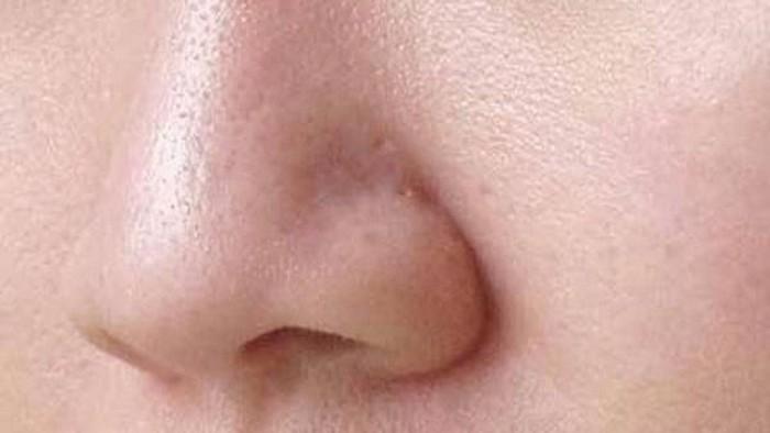 Mengecilkan Pori-Pori Kulit Wajah Dengan Cara Mudah dan Alami