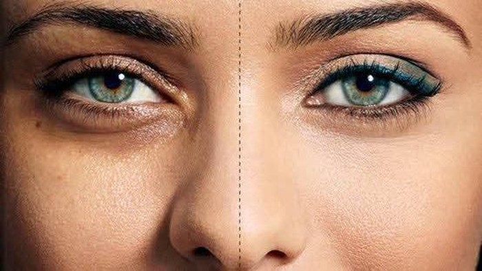 15 Cara Mudah Mencerahkan Lingkaran Hitam di Bawah Mata