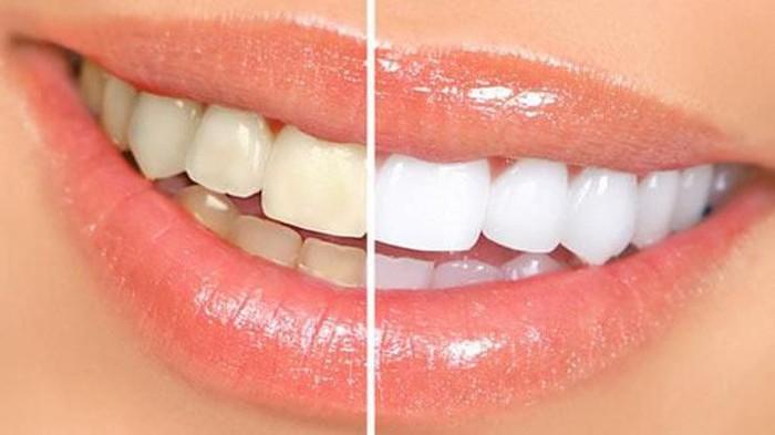 Cara Terbaik Memutihkan Gigi
