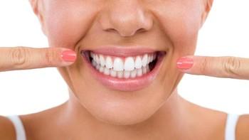 5 Cara Mencegah Karang Gigi