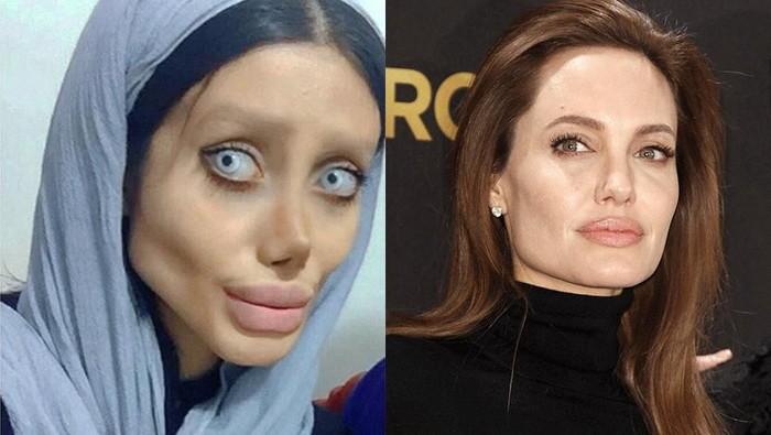 Miris! Ingin Mirip Angelina Jolie Hingga Operasi Plastik Hingga 50 Kali Tapi Gagal, Begini Tampilan Sahar Tabar Sekarang