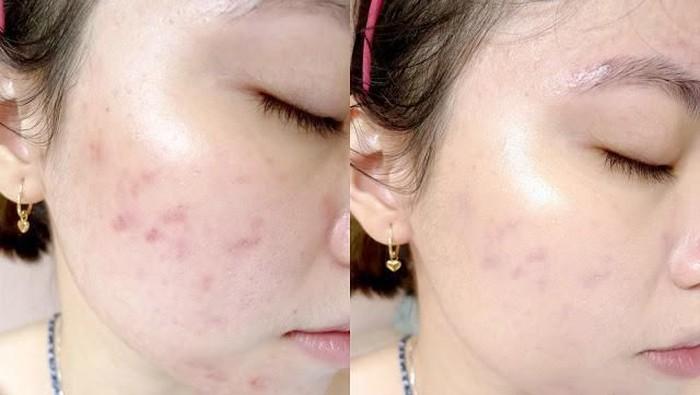 Ini Lho Rekomendasi Skincare Korea yang Ampuh Banget Menghilangkan Bekas Jerawat!