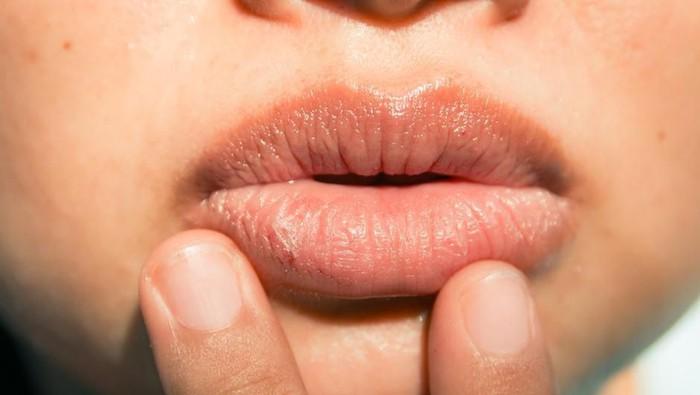 Wow, Ternyata Inilah Fakta di Balik Munculnya Bibir Kering Hingga Pecah-pecah
