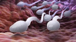 5 Penyebab Sperma Encer: Ejakulasi sampai Celana Ketat