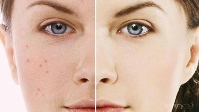 Tips Makeup Aman Saat Berjerawat