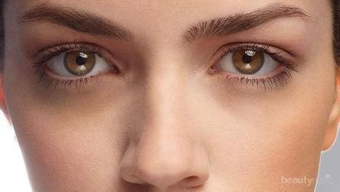 Cara Mudah Hilangkan Mata Panda