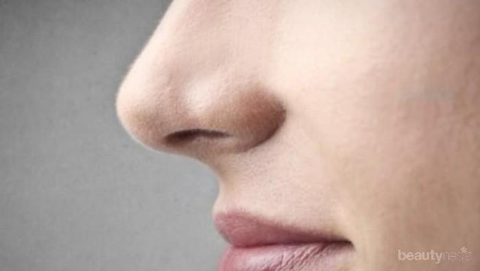 Cara Nangani Jerawat Putih Cair Di Hidung