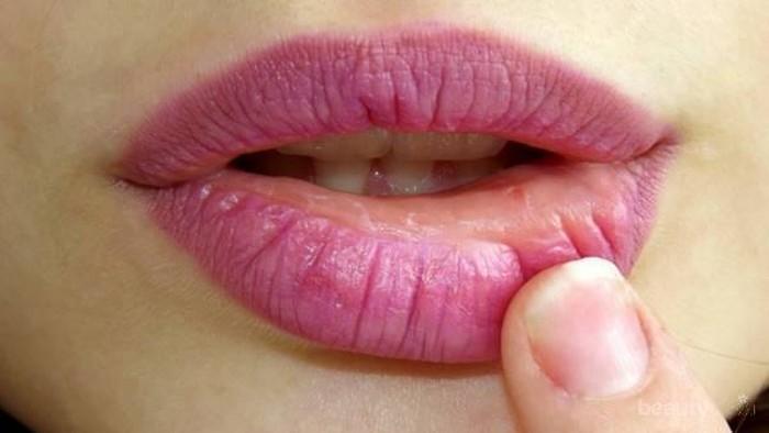 [FORUM] Suka gemes gak sih ngelupas bibir pecah-pecah sampai berdarah?