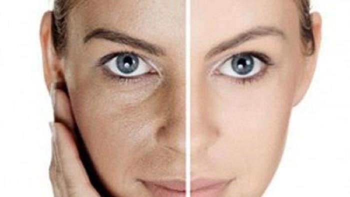 [FORUM] Mukaku tipe kulit kering dan sensitif bagusnya pake skincare apa??