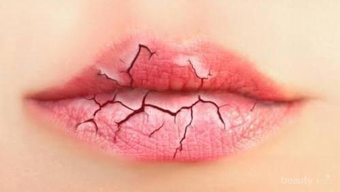 Lipbalm murah yang ampuh bnget mengatasi bibir kering apa ya?