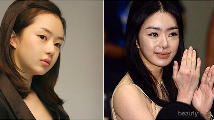 Mengerikan! Artis Korea Berikut Gagal Operasi Plastik Hingga Wajahnya Sulit Dikenali