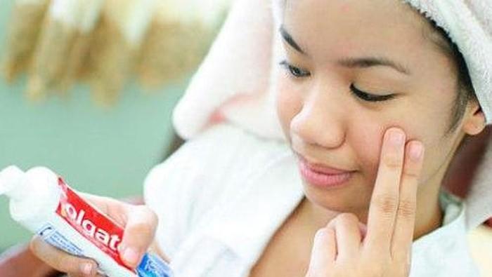 Bolehkah pakai pasta gigi untuk hilangkan jerawat?