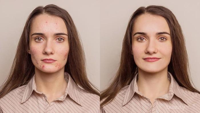 Ladies, Jangan Sampai Salah! Ini Tips Make Up yang Tepat dan Flawless untuk Kulit Berjerawat
