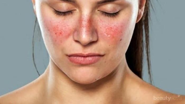 Jerawat Meradang Pada Wajah Penggunaan Produk Oriflame
