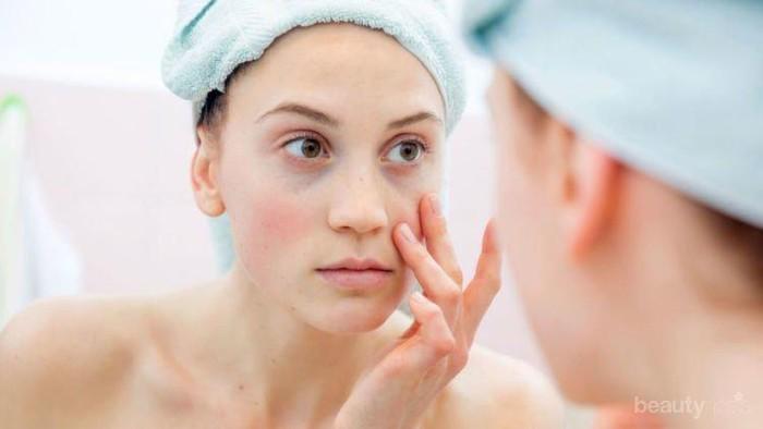 [FORUM] Pernah punya pengalaman ga cocok sama satu skincare luar?
