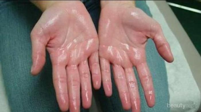 [FORUM] Telapak tangan sering berkeringat, adakah yang mengalaminya?