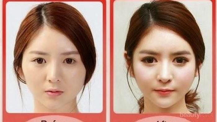 [FORUM] Plastic Surgery sebenernya sah-sah aja ga sih guys?
