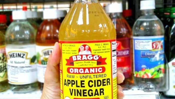Cuka Apel Bragg Apple Cider Vinegar Bisa Mengobati Jerawat?