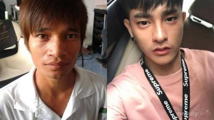 #FORUM Gak Nyangka! Pria Thailand Ini Sudah Operasi Plastik Sebanyak 30 Kali Lho! Gimana Tanggapan Kalian?
