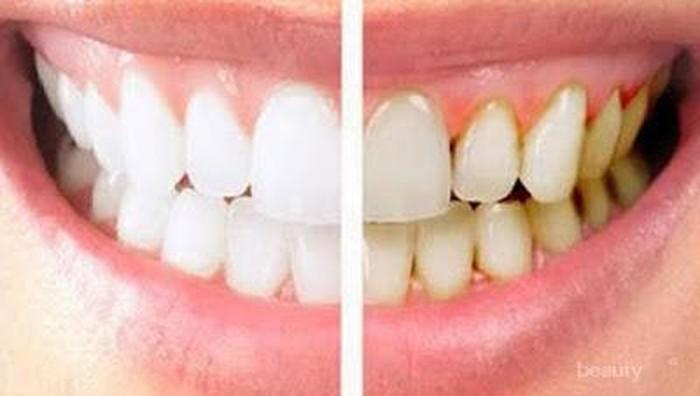 Cegah Plak Gigi Sedini Mungkin, dengan Melakukan Kebiasaan Ini