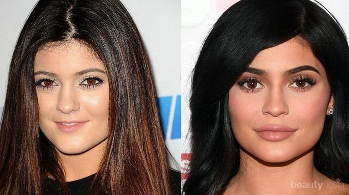 #FORUM Punya Bibir Tipis vs Bibir Tebal, Menurut Kamu Lebih Baik yang Mana?