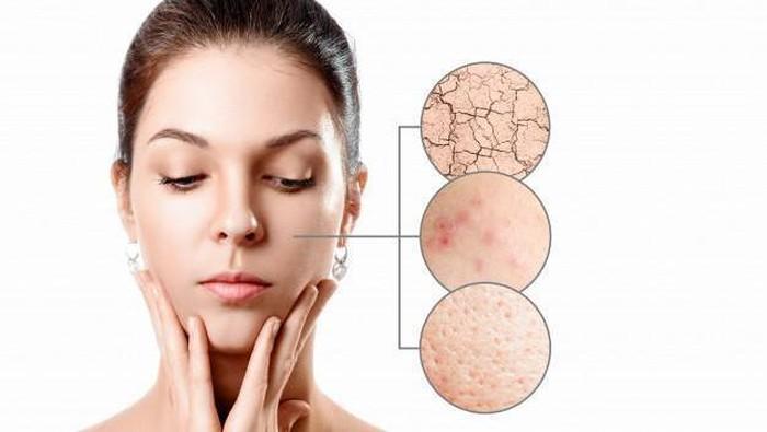 Kulit Kamu Mengalami 5 Hal Ini? Sekarang Waktunya Ganti Produk Skincare!