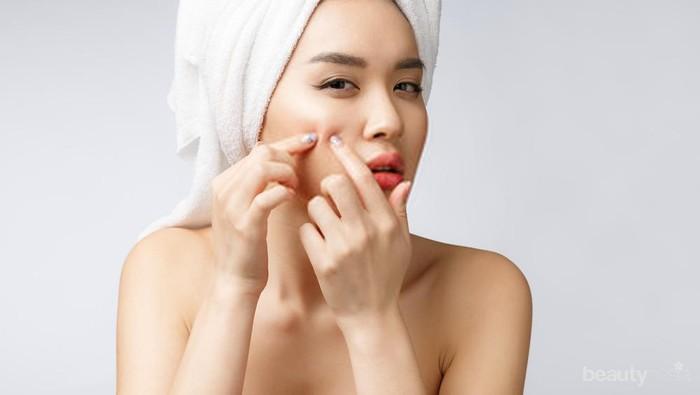 Hati-hati, 5 Kebiasaan Buruk Ini Bisa Picu Jerawat Lho Ladies!