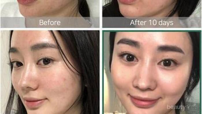 Tak Perlu Facial Mahal, Essence Korea Ini Ampuh Atasi Jerawat dan Bekasnya