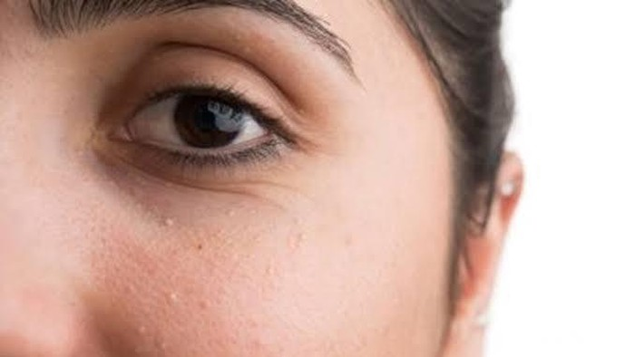 Ajaib! 8 Bahan Ini Ampuh Hilangkan Bruntusan Hanya dalam Satu Malam, Begini Caranya