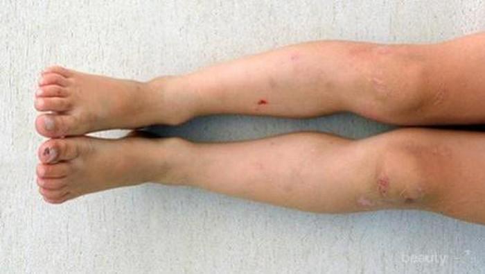 [FORUM] Cara menghilangkan bekas gigitan nyamuk gimana ya ladies?