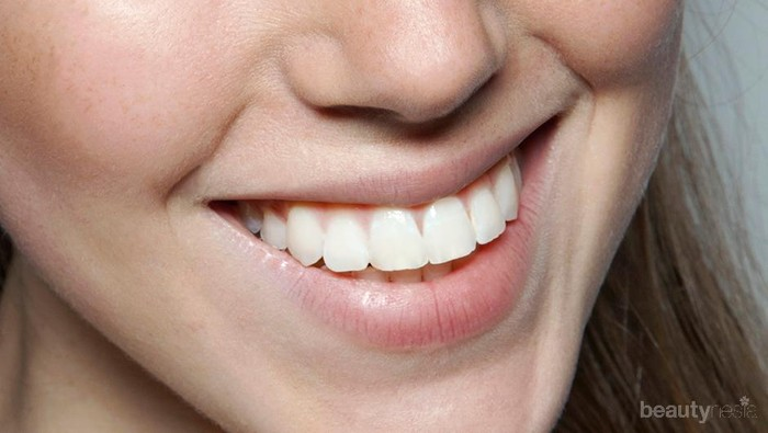 Menurut Dokter Gigi, Ini 4 Cara Paling Efektif Putihkan Gigi