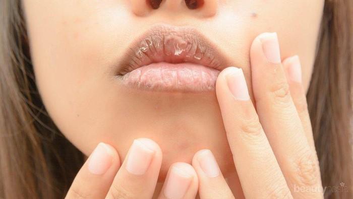 Hat-hati Bibir Kering Bisa Berdarah, Cari Tahu Penyebabnya untuk Segera Diatasi