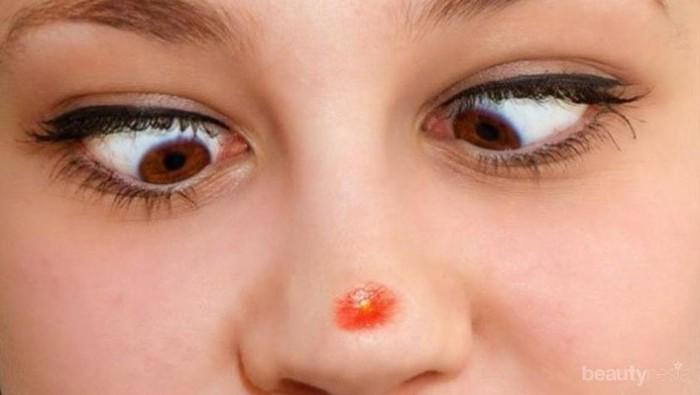 Cara Menghilangkan Jerawat Di Hidung Yang Besar