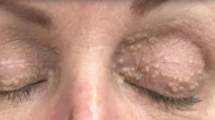 [FORUM] Skin care apa yang ampuh menghilangkan milia pada kulit wajah?